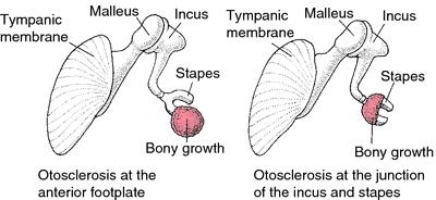 Stapes Refleksi ve otoskleroz
