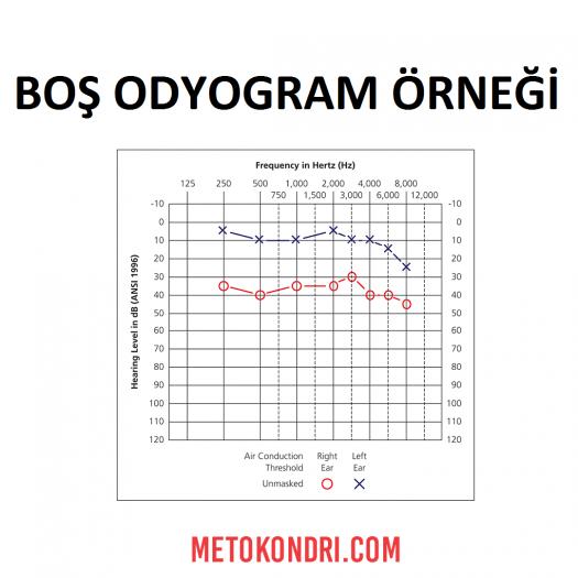 Boş Odyogram Örneği