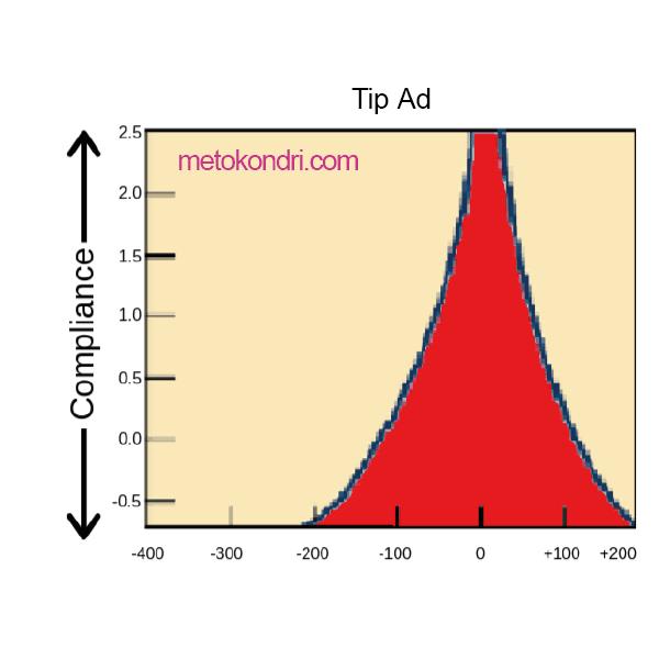 Timpanometri Tip Ad