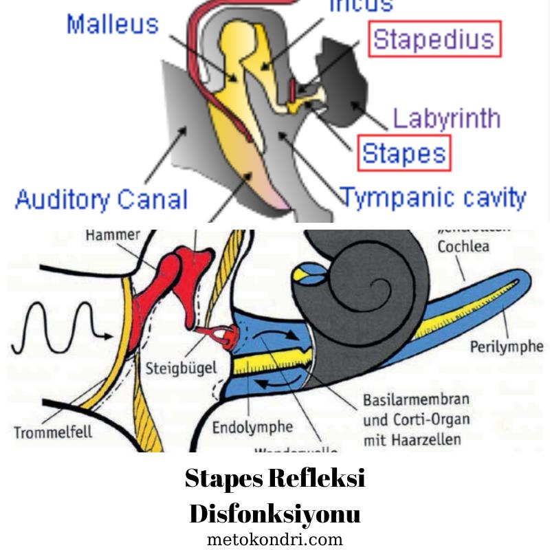 Stapes Refleksi Disfonksiyonu