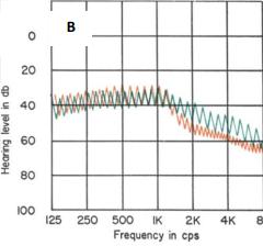 Bekesy Odyometresinde Odyogram Tipleri tip II
