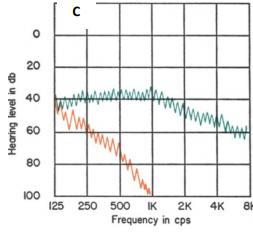 Bekesy Odyometresinde Odyogram Tipleri tip III