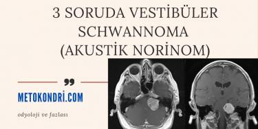 3 Soruda Vestibüler Schwannoma (Akustik norinom)