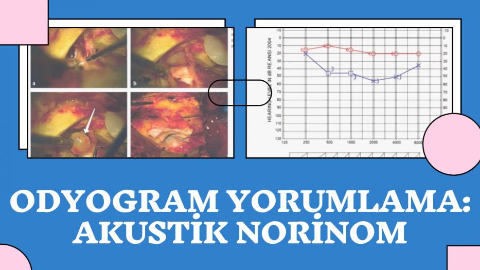 Odyogram Yorumlama #1: Akustik Norinom
