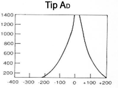 Timpanogram Tipleri: Tip AD