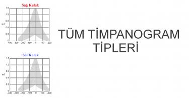 Timpanogram Tipleri 2020
